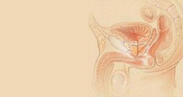prostate_cancer