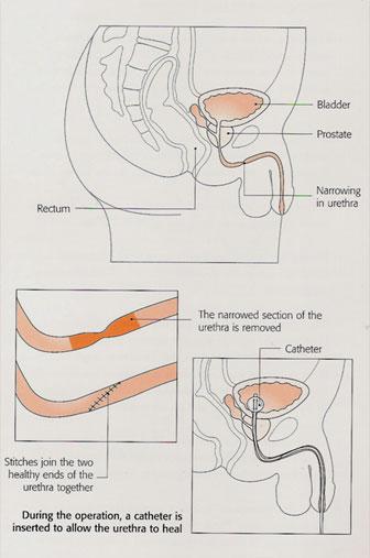 urethral3