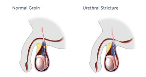 Urethral-Stricture